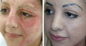 Bộ đôi kết hợp che khuyết điểm sẹo và trị sẹo